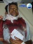 Taiz 30 Mai 2011- Killeds & Injureds (15)