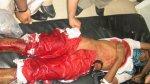 صور: بعض شهداء وجرحى تعز 19 سبتمبر 2011 (38 صورة)